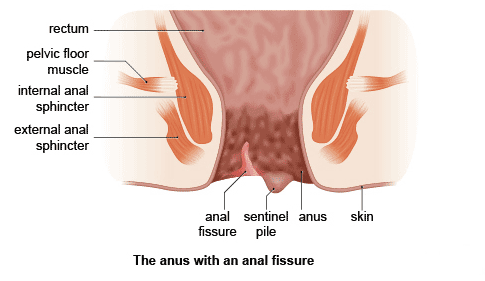 free small penis pictures